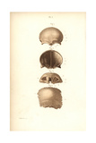 Frontal Bones of the Skull Giclee Print