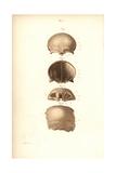 Frontal Bones of the Skull Giclee Print