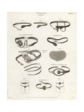 Surgical Trusses from the 19th Century Giclee Print by J. Farey