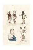 Human Disorders Giclee Print by Ambroise Tardieu