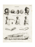 Surgical Procedures from the 19th Century Giclee Print by J. Farey