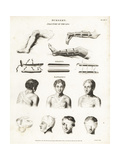 Surgical Procedures from the 19th Century Giclee Print by Wilson Lowry