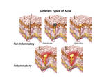 Different Types of Acne, Non-Inflammatory and Inflammatory Posters