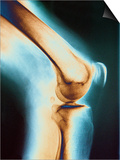 Knee X-ray Posters