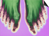 X-ray of Feet Prints
