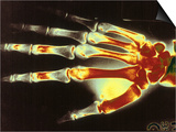 Digitized X-Ray of Normal Human Hand Prints