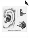 Diagrams to Show Blodgett's Micro-Audiphone Hearing Aid and How It is Inserted into the Ear Posters