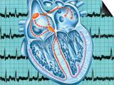 Atrial Fibrillation Posters by John Bavosi