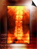 Healthy Lower Back, X-ray Art by Miriam Maslo