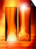 Healing Ankle Fracture, X-ray Poster by Miriam Maslo