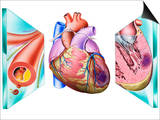 Heart Attack Prints by John Bavosi