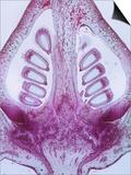 Longitudinal Section of Cotton Fruit (Gossypium), LM X4 Art by  Biodisc