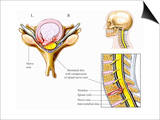 Illustration of Cervical Disc Herniation with Spinal Cord and Nerve Root Impingement Print by  Nucleus Medical Art