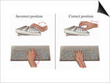 Illustration Showing the Proper and Improper Methods for Keyboard Typing Prints by  Nucleus Medical Art