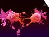 Lung Cancer, Electron Microscopy Unit, Cancer Research, UK Prints by Anne Weston