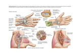 Medical Illustration Showing Carpal Tunnel Syndrome in the Human Wrist Prints