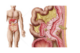 Illustration of Diverticulosis in the Colon Prints