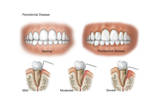 Three Stages of Periodontal Disease Posters
