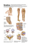 Medical Chart Showing the Signs and Symptoms of Sciatica Prints