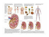 Medical Chart Showing the Signs and Symptoms of Kidney Stones Poster