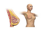 Cutaway View of Female Breast with Woman Figure Showing Lymphatic Glands Posters