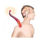 Cerebrovascular Neurol. Disease Giclee Print by Caroline Arquevaux