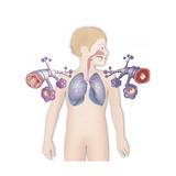 Asthma, Drawing Giclee Print by Caroline Arquevaux