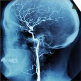 X-Ray of Human Head Art by Robert Llewellyn