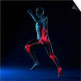 Running Injuries, Conceptual Artwork Poster by  SCIEPRO