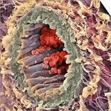 Artery SEM Prints by Steve Gschmeissner