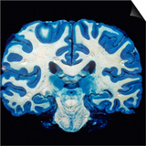 Brain, Coronal Section, Grey Matter Stained Blue Poster by Ralph Hutchings