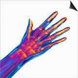 Human Hand Showing Bones and Muscles Prints by Carol & Mike Werner