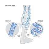 Diagram Illustrating Varicose Veins Posters