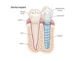 Dental Implant Poster