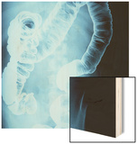 X-Ray of Intestines Wood Print by Robert Llewellyn