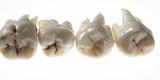 Four Human Wisdom Teeth Shot on White Photographic Print by Rebecca Hale