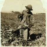 Alex Reiber Aged 7 Carries on Topping Sugar Beets after 'Hooking' His Knee Photographic Print by Lewis Wickes Hine