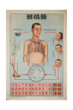 Sick People Can Spread Tb Through Bodily Discharges Posters