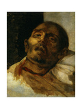 Head of Guillotined Man, Ca. 1819 Giclee Print by Theodore Gericault
