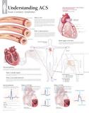 Understanding Acs Posters