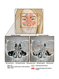 Sinuses and Sinusitis Posters by  Science Source