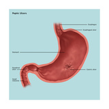 Stomach Ulcers, Illustration Posters by Gwen Shockey