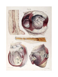 Heart, Aneurysm, Illustration, 1838 Giclee Print by  Science Source