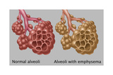 Normal vs. Emphysematous Alveoli Print by Gwen Shockey