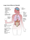 Long Term Effects of Alcohol Poster by Spencer Sutton
