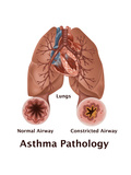 Asthma Pathology Posters by Gwen Shockey
