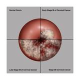 Cervical Cancer Progression, Illustration Prints by Gwen Shockey