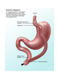 Gastric Bypass Surgery Poster by Gwen Shockey