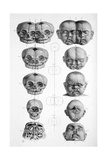 Surgical Anatomy, 1856 Giclee Print by  Science Source