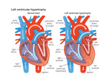 Left Ventricular Hypertrophy Poster van  Encyclopaedia Britannica